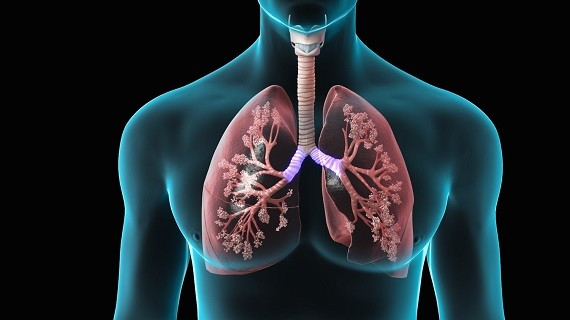 Study Shows Evidence That Fat Can Accumulate in Lungs