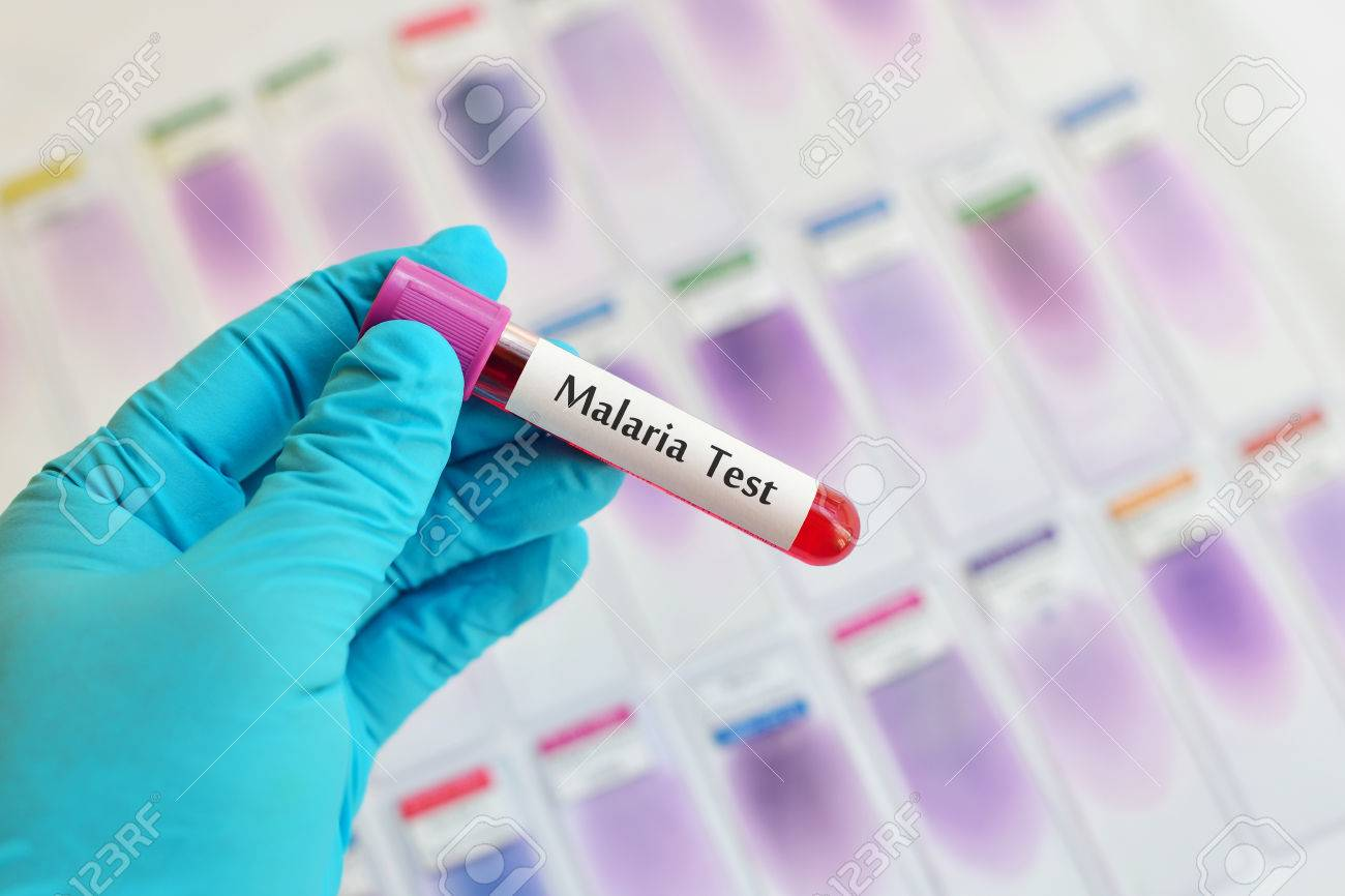Physicians Warn Against Taking Antimalarials Without Diagnosis
